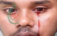 شاب يذرف دماً من عينيه والأطباء عاجزون عن تفسير السبب