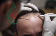 وفاة شخص في عملية زراعة شعر تحير الأطباء