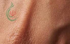 علماء يبتكرون جلداً حياً ثلاثي الأبعاد مطبوعاً عليه أوعية دموية