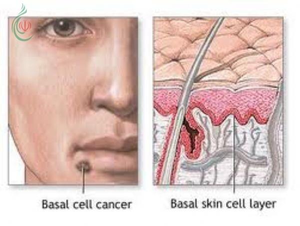 طهران : اختبار إيراني ناجح لعلاج السرطان