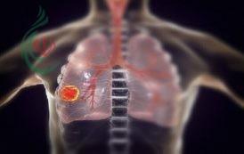 علماء أمريكيون يكشفون عن عضو أساسي يتلفه فيروس كورونا بعد مهاجمة الرئتين