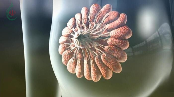 الأسباب الرئيسية للإصابة بسرطان الثدي ..؟