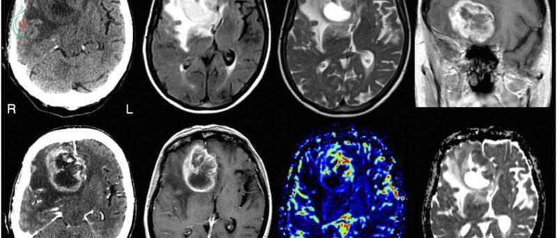 الأول من نوعه .. اختبار يمكن من اكتشاف سرطان الدماغ عبر البول